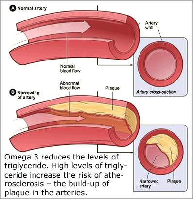 Fish oil benefits: Reducing triglyceride and preventing atherosclerosis and plaque in arteries.