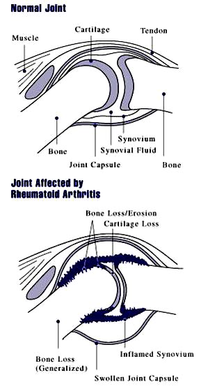 Some of the benefits of fish oil is the reduction of inflammation from arthritis. Picture of arthritis in joints.