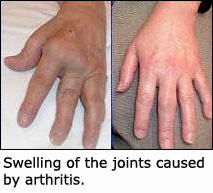 Fish oil can prevent the swelling in arthrisis: Picture of hands affected with arthritis.