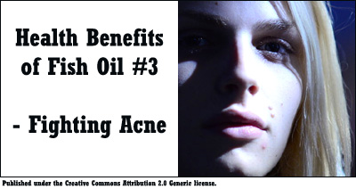 Fish oil help fight off acne. Picture of young girl with a few pimples.