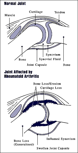 Illustration of healthy joint and joint affected by rheumatoid arthritis.