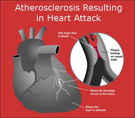 Infographic of atheroslcierosis and heart attack.