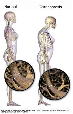 Picture of normal posture and person with osteoporosis.